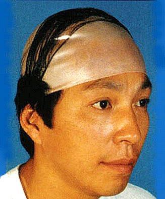 Cortes de pelo para ocultar calvicie en mujeres con alopecia