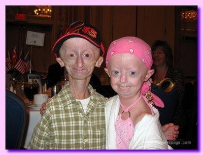 PROGERIA Progeria