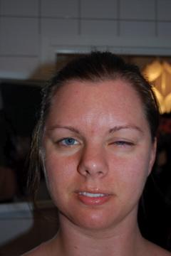 kan man jobba med ögoninflammation