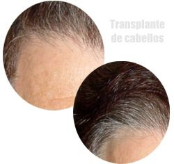 transplante de cabello pelo sin cirugia sin cicatriz implante capilar