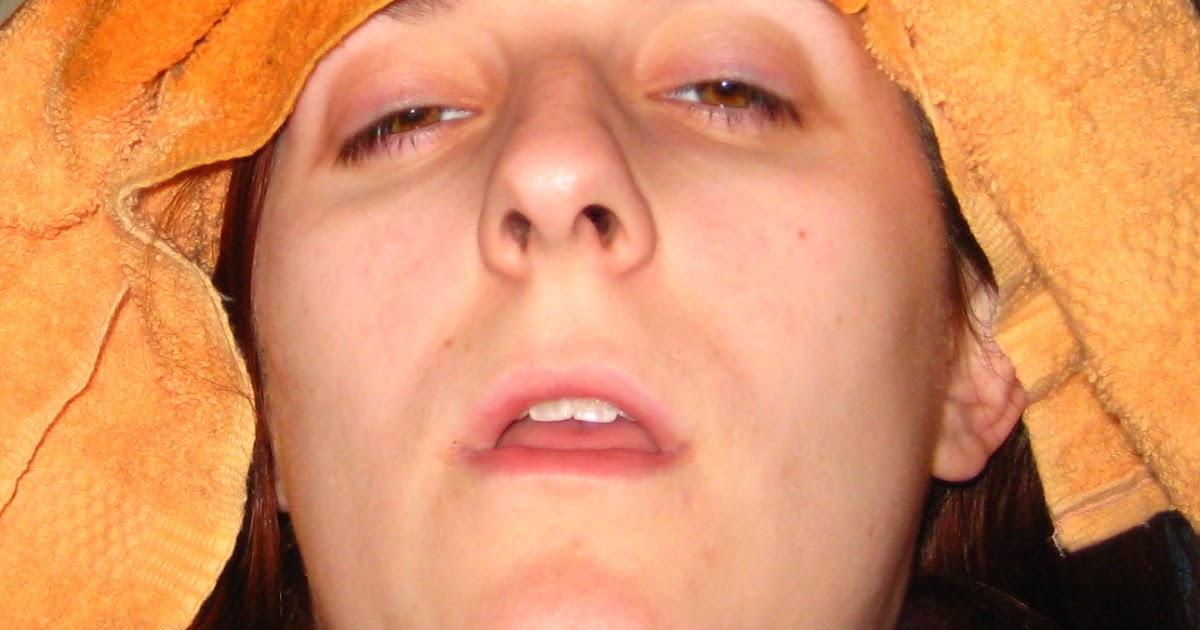 Sickly Face