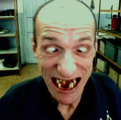 http://2.bp.blogspot.com/_9c5Rm4GqmoM/SY4RZrP_VXI/AAAAAAAAAfM/zhTC9HxCyCA/s400/bad+teeth.jpg