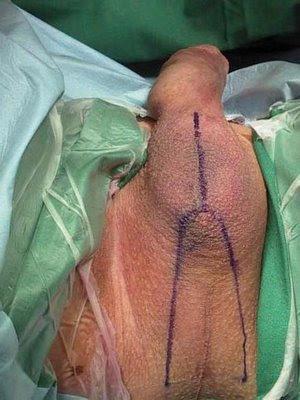 Ariadna Do Bbb Foto Pau Dela Antes Da Cirurgia