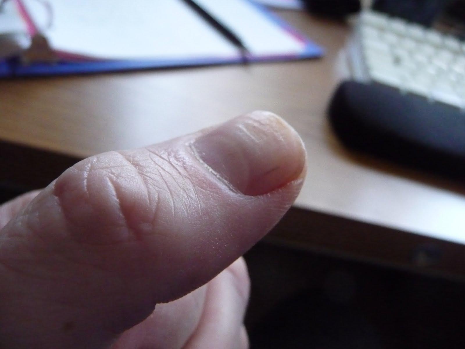Deus ex machina: Lines and ridges on my fingernails - gone!