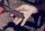 Fome = Miséria
