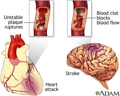 Heart&Stroke