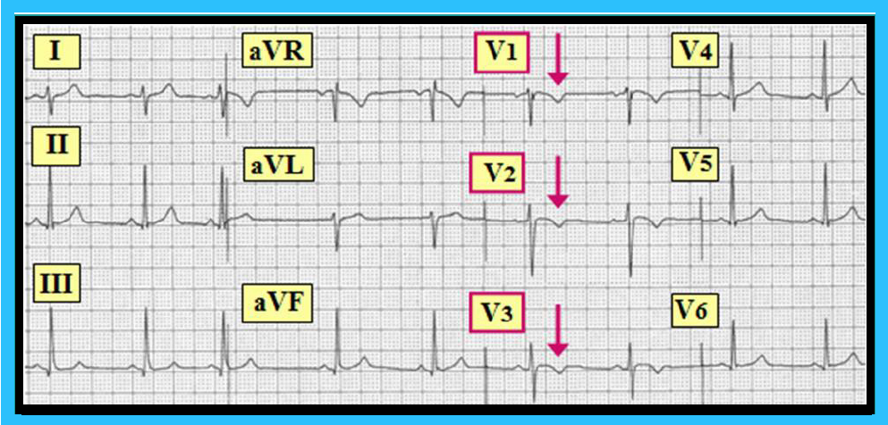 ECG Interpretation: ECG Interpretation Review - #5 (T Wave Inversion ...