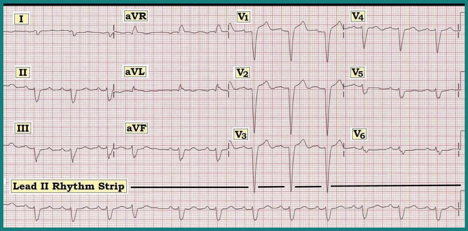 Ecg Interpretation Ecg Interpretation Review 13 Bbb Wide Qrs Is