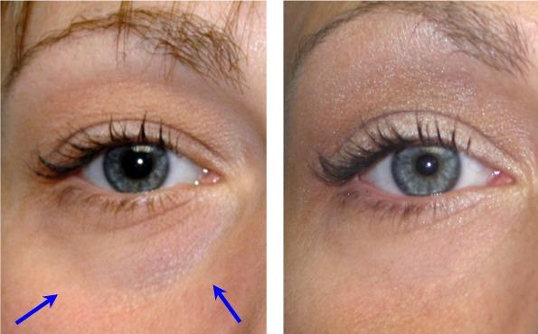 Surgeryeye Eye Lift Surgery The Complications With Eye