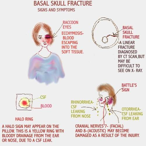 Fracture signs skull of basilar Clinical Signs