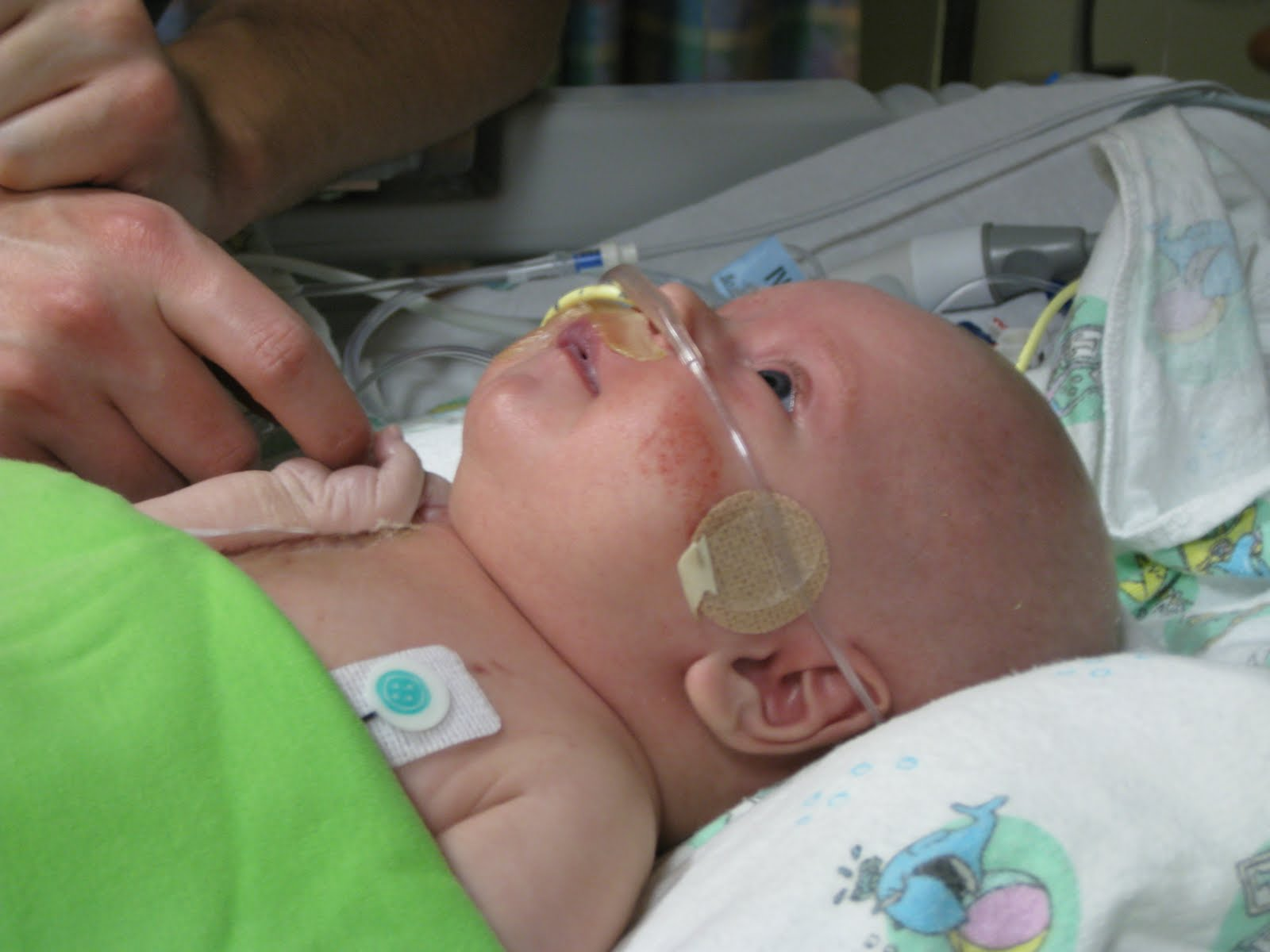 Nasal+cannula+placement