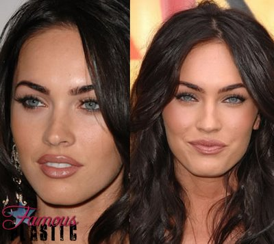 megan fox plastic surgery nightmare. megan fox surgery