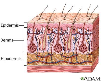 enfermedades en la piel. ENFERMEDADES DE LA PIEL