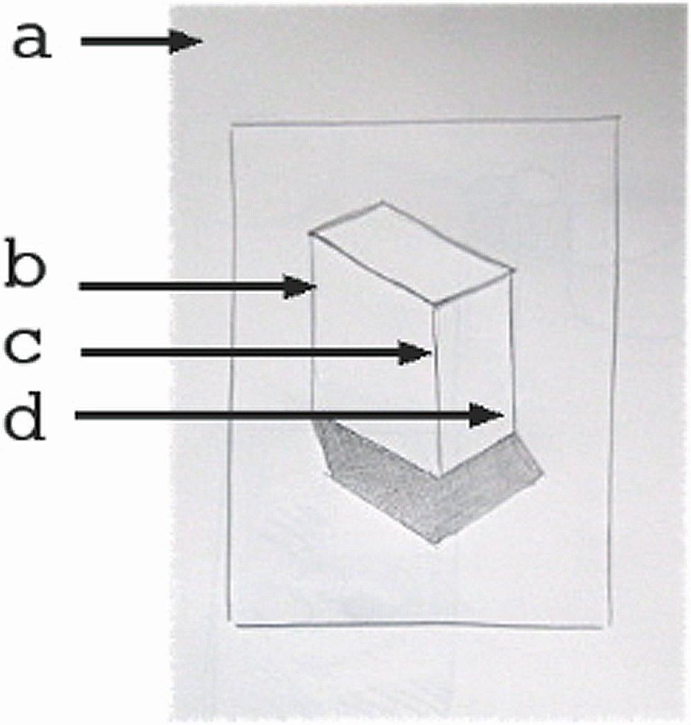 [box]
