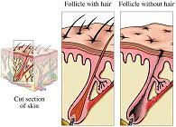 [alopecia2_edit.JPG]