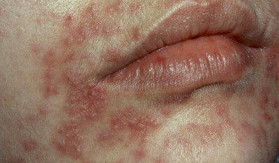 http://2.bp.blogspot.com/_AomIg2-Ao9g/TMRpqOpvF9I/AAAAAAAAAnU/lO3mSG9RHg0/s1600/acne_6.jpg