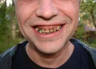 Rotten Teeth
