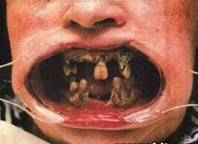 http://2.bp.blogspot.com/_B1LlYh6iKqs/Sq7sCW7wfKI/AAAAAAAAAvY/Ef1M6K7WqZQ/s400/rotten-teeth.jpg