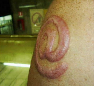 scarification tattoo. Awesome Scarification