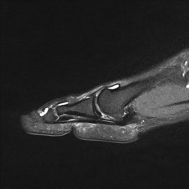 Radiology Cases Plantar Plate Tear