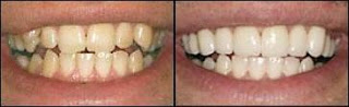 Akron Tooth Whitening