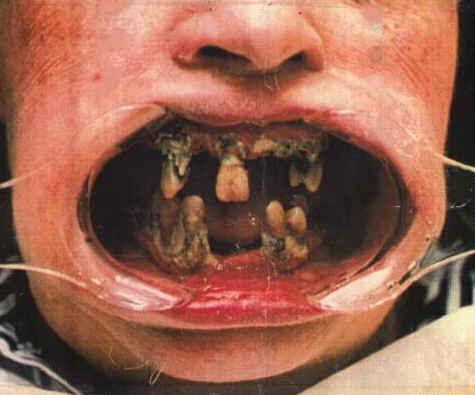 http://2.bp.blogspot.com/_BJtRXDw_jDI/S0r-CQFULpI/AAAAAAAAACY/m3yHJ_3p1dg/s1600-R/bad-teeth.jpg