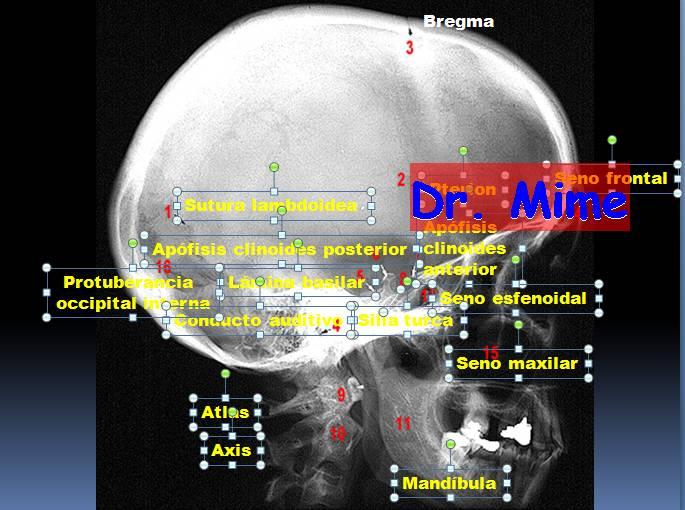 El blog neuroanatomico del Dr. Mime: ANATOMIA RADIOLOGICA DEL CRANEO