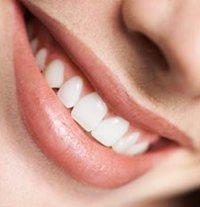 Cara Alami Putihkan Gigi