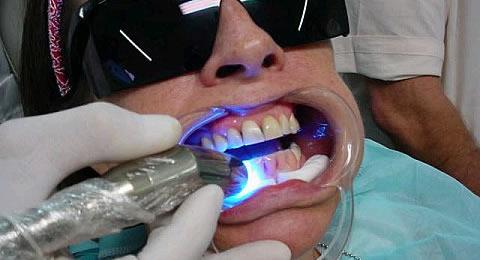 Clinica Odontologica Moderna Clareamento A Laser