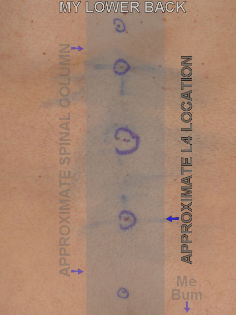 My lower back, targets and tattoos are circled in blue