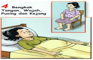 Tanda-tanda Bahaya Kehamilan - Sakit kepala hebat,Bengkak pada muka dan tangan,Penglihatan kabur