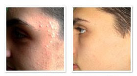 acne scars before and after, scars be gone review