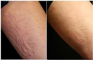 stretchmarks before and after scar solution