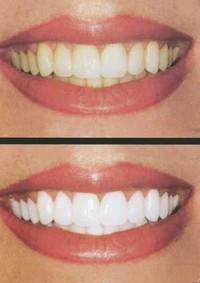 Tips gigi putih dan sehat
