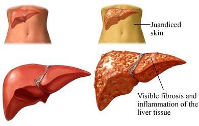 symptoms of diabetes low