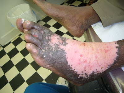 Photos of Cow Ant Bites http://shotwildlife.blogspot.com/2009/06/zombie-attack.html