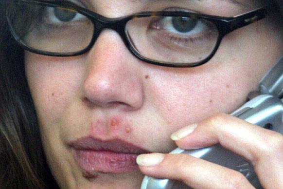 Cold Sore White Head Pimple : Cold Sore Treatment – Oxygen Therapy