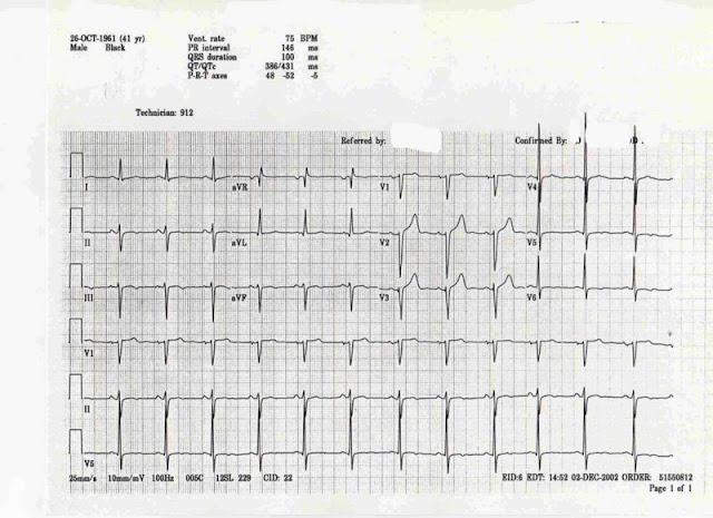 Left Anterior Fascicular Block - CardioNotes
