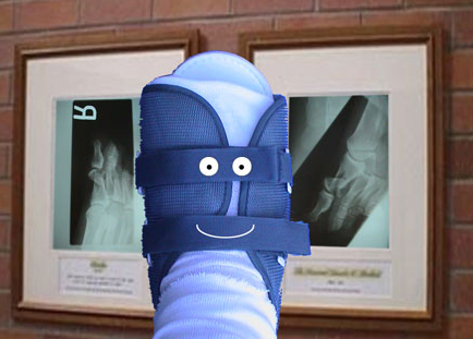 broken toe. The Tale of the Broken Toe,