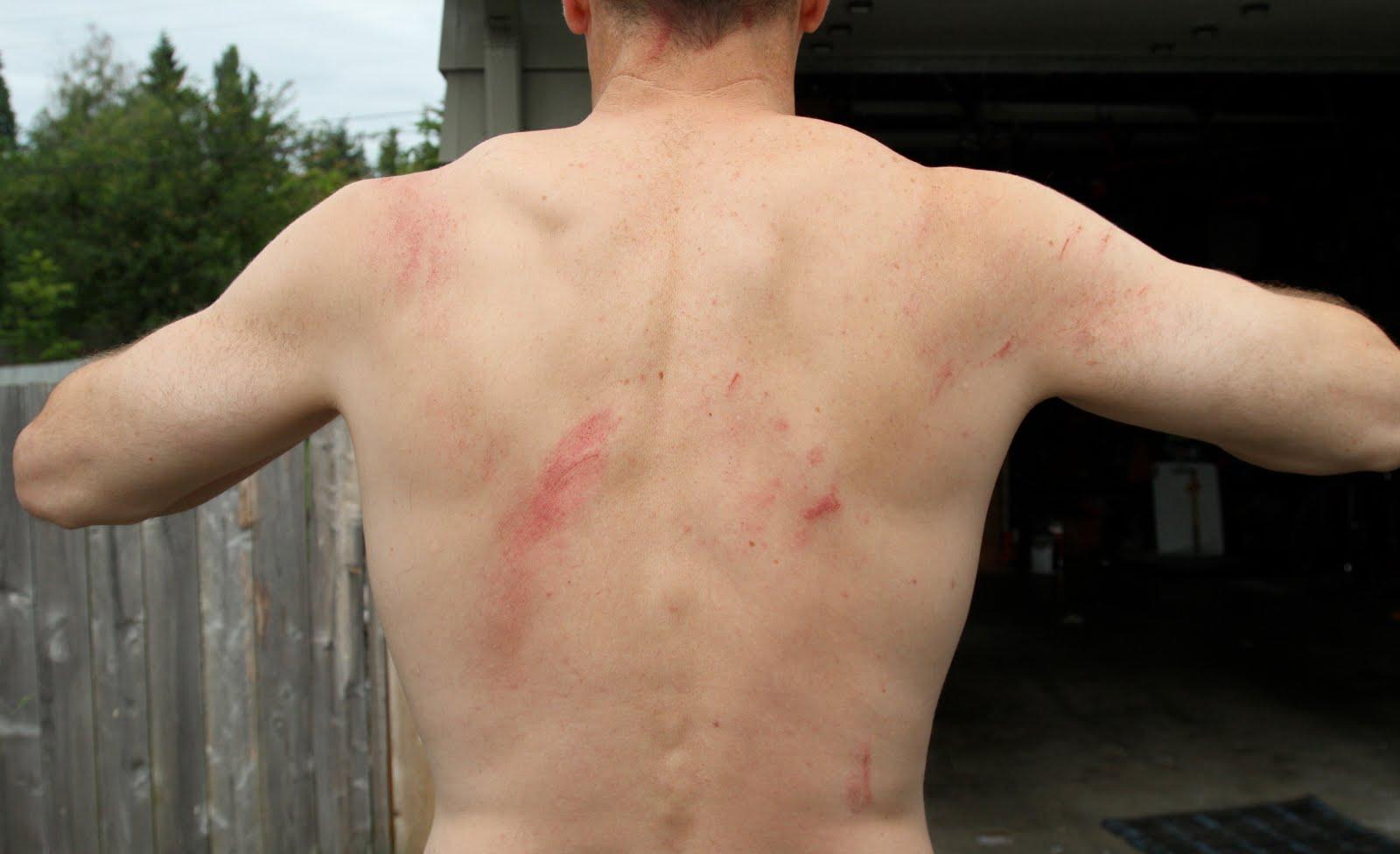 Crack jeu gratuit. is my rib bruised or cracked. mychat 5.2 crack.