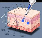 . a la piel (pliegues, conexión) y asegura su elasticidad. horsezombie