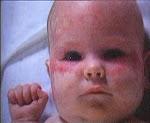 Bebekte Kızartılı Lupus