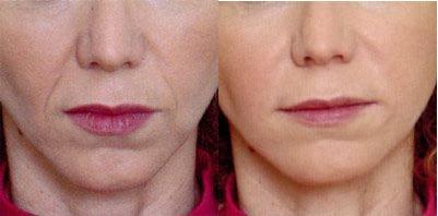 Mesotherapy: Salud y nueva imagen de belleza con