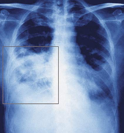 Nursing Interventions for Pneumonia