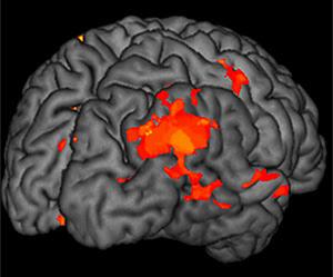 Consiguen leer el pensamiento a través de un escáner cerebral