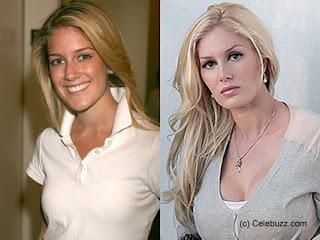 Heidi Montag vor und nach den Schönheitsoperationen