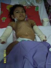 pembedahan kedua2 lengan pada 11.8.2008 di HUKM..AA baik..