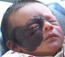 الوحمة..علامة فارقة في جسم الطفل Facial_Nevus