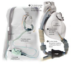 Diagram of LVAD