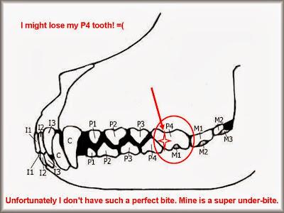 teeth diagram with labels. teeth diagram with labels. color online Teeth+diagram